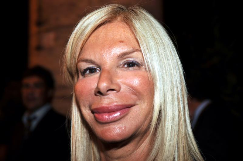 One of Lisa Fellow's friends who attended her Botox party.